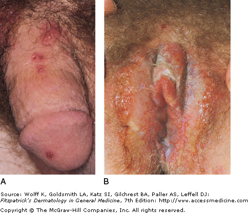 Symptoms of primary genital herpes 3